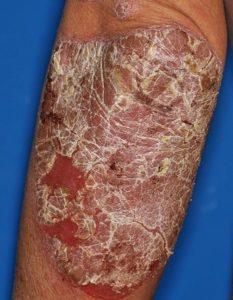 尋常性乾癬 臨床像