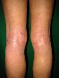 アトピー性皮膚炎臨床写真