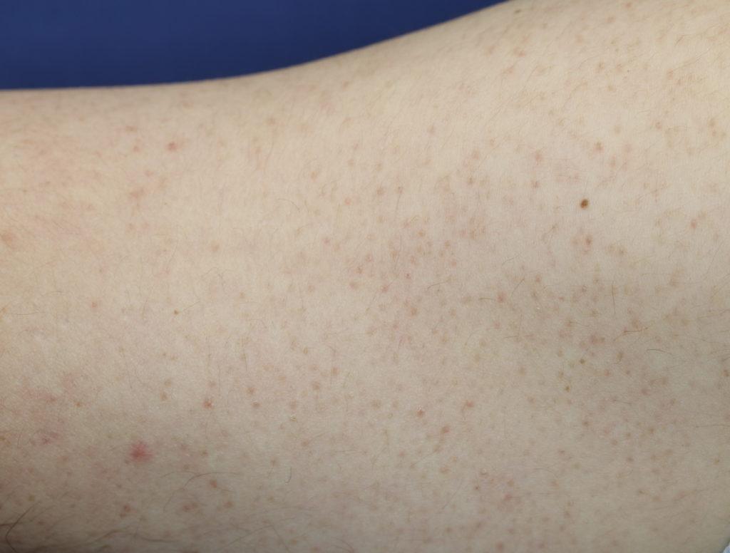 毛孔性角化症臨床写真