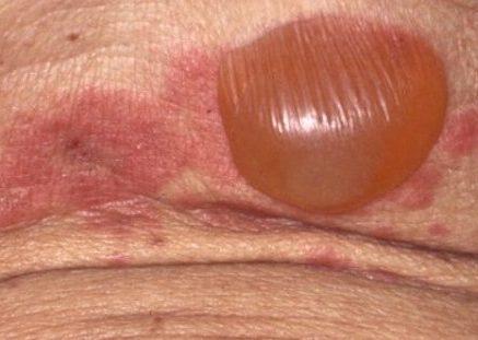 水疱性類天疱瘡